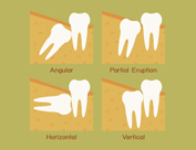 Tooth Extraction