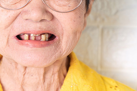Tooth-loss-connected-with-dementia