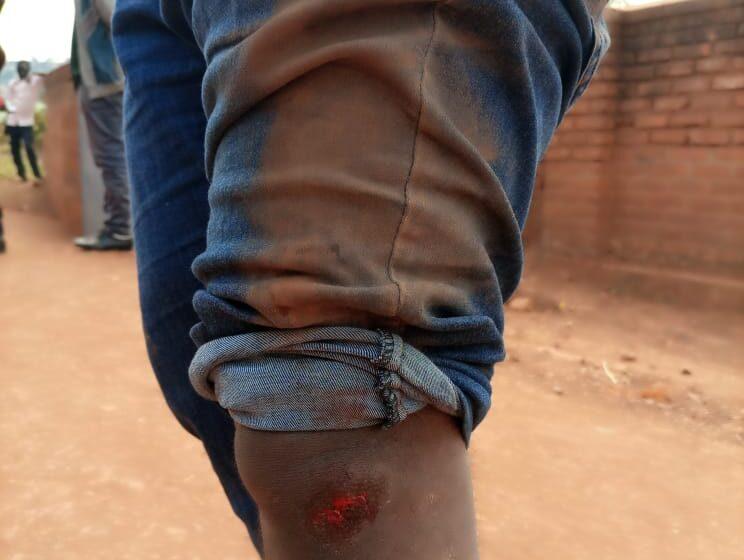 Kigali: Umushoramari ufite uruganda iwe mu rugo arakekwaho gukubita Abanyamakuru bari mu kazi