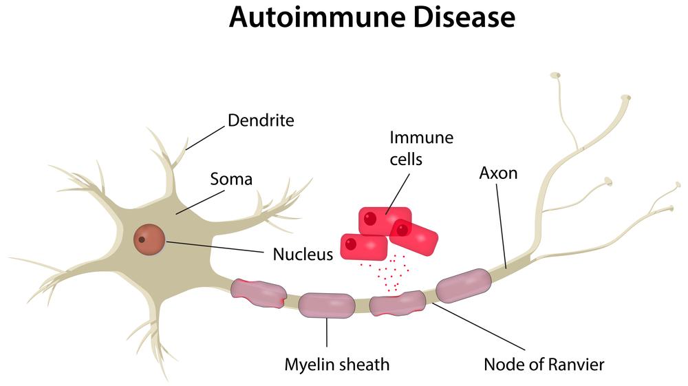 Auto-Immune Disorders
