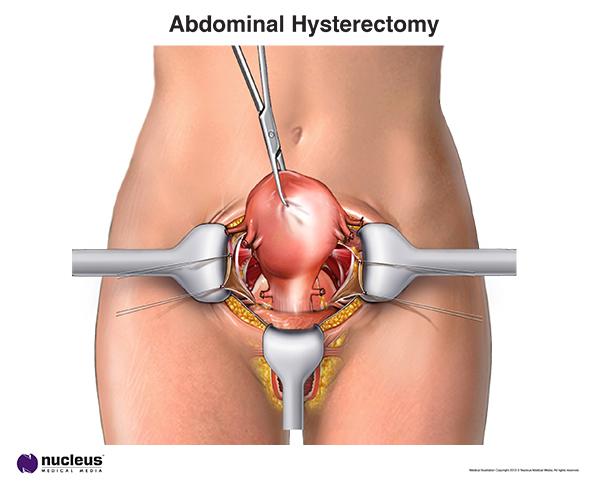 Abdominal Hysterectomy
