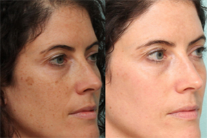Age/Sun Spot Removal before after