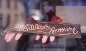 What is the cost of tattoo removal?