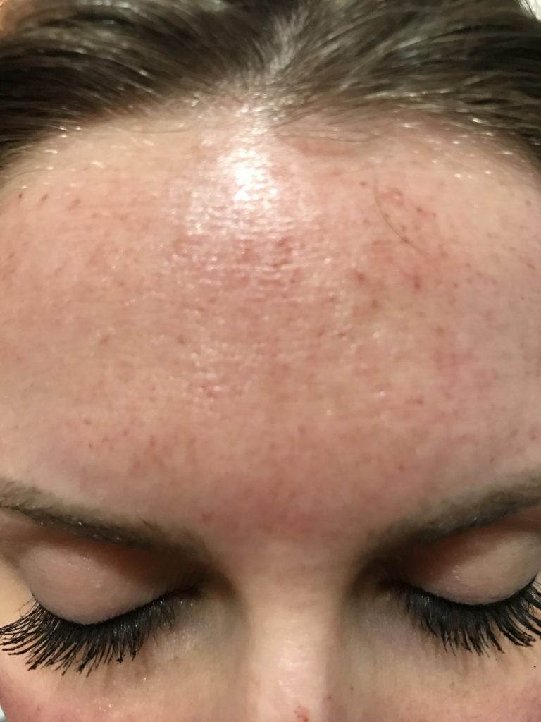 EVERYTHING TO KNOW ABOUT MICRONEEDLING
