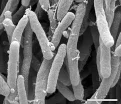 Xylella fastidiosa vista al microscopio.