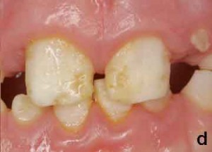 119: Preemie Teeth