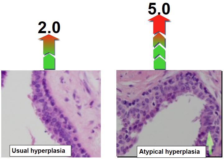 Hyperplasia breast cancer risk