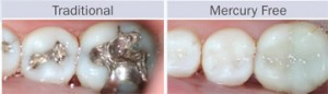 Traditional and Mercury Free Fillings