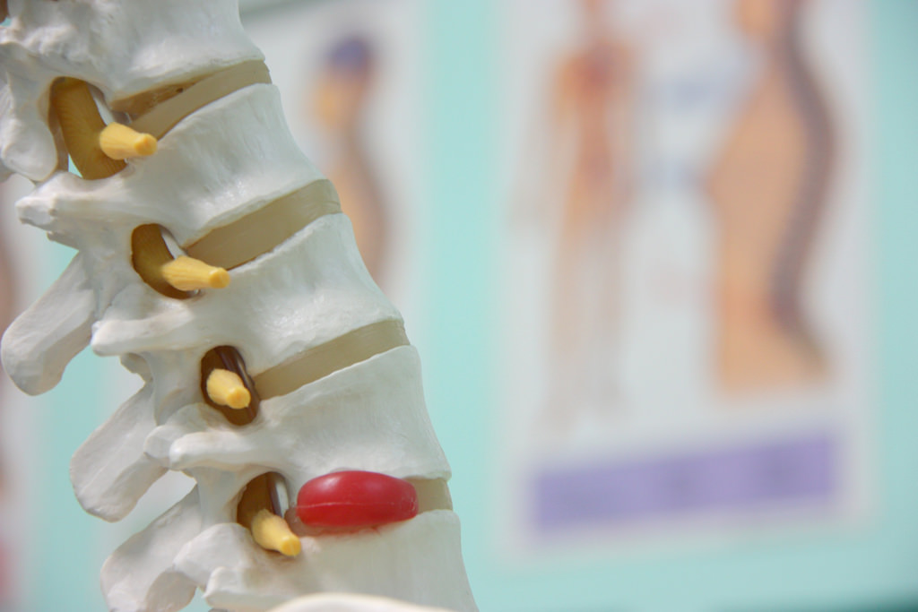 Got Disc Herniation? What To Do?