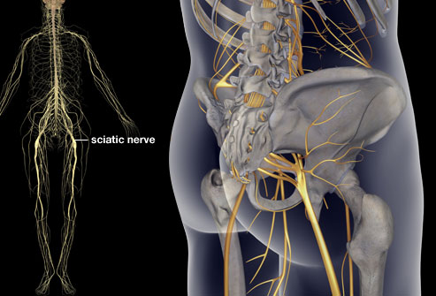 I Think I have Sciatica…..