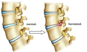 """Herniated disc"", they say?"