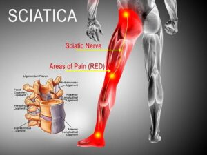 EXERCISE, LIFESTYLE, AND CHIROPRACTIC CARE FOR SCIATICA