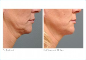 Ultherapy: Lower Face Before & After Photos