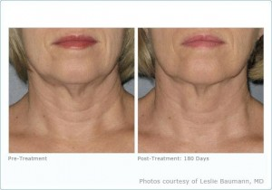 Ultherapy: Neck Before & After Photos