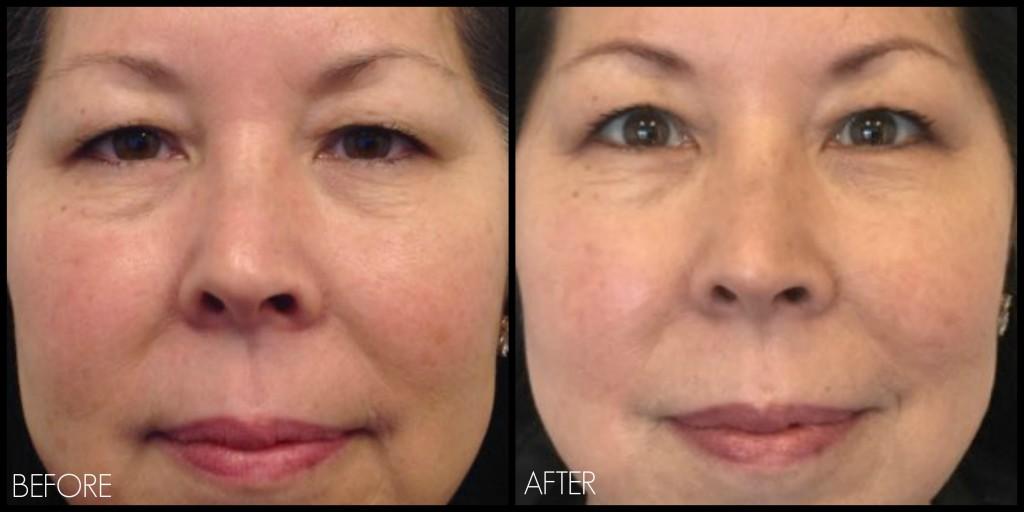 Ultherapy Eye Treatment