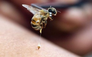removing bee sting