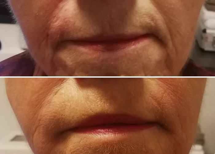 Before and after treatment at Royal Aesthetic Center Milford massachusetts Medical Spa