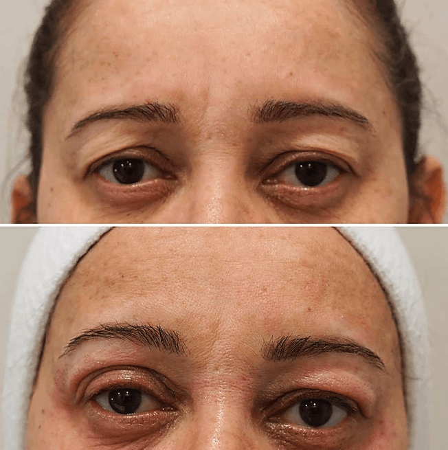 Before and after eye lift treatment at Royal Aesthetic Center Milford massachusetts Medical Spa