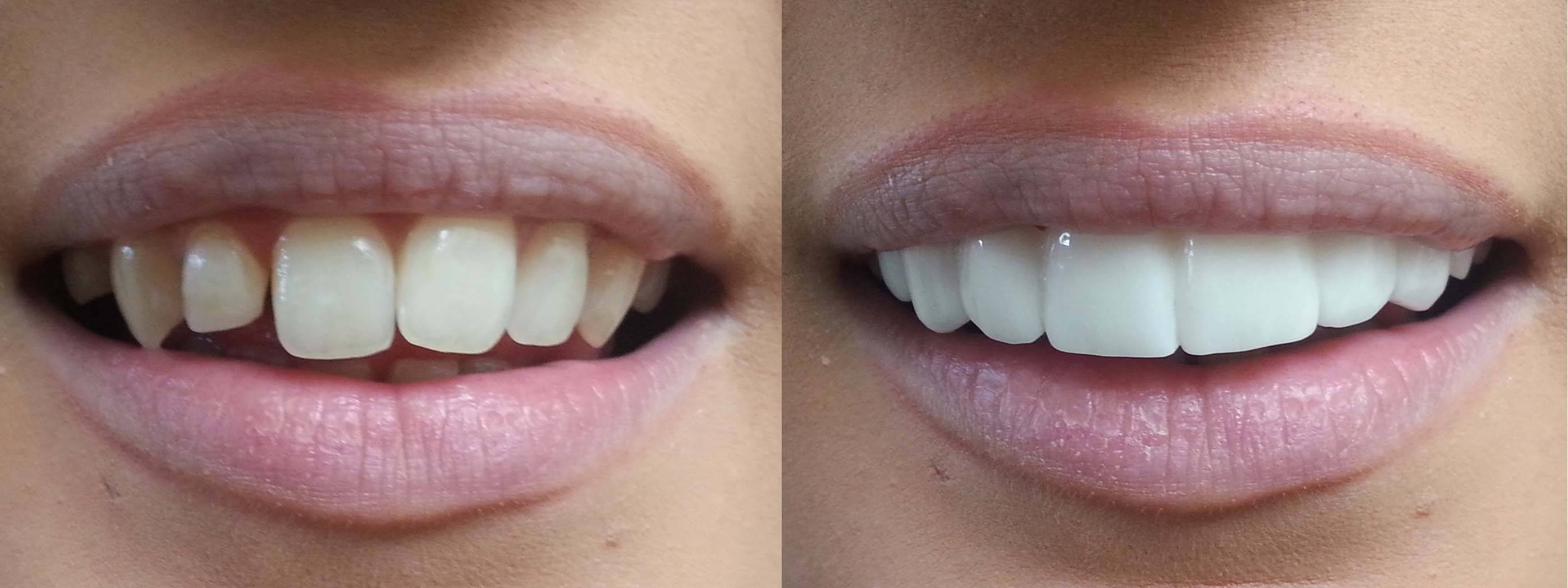 Veneers for $3995 in Austin Texas