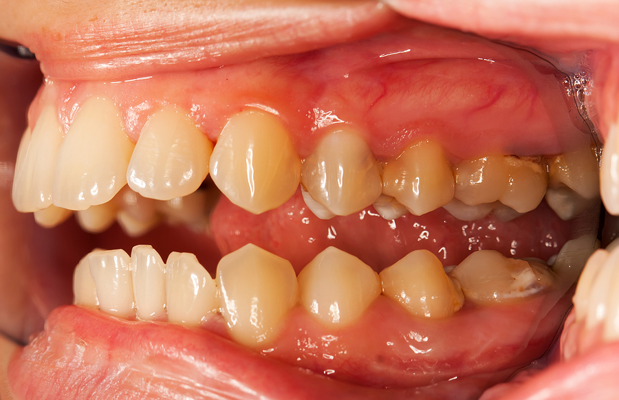 probiotic to prevent tooth decay