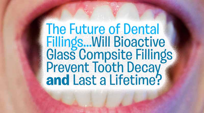 bioactive glass fillings texas