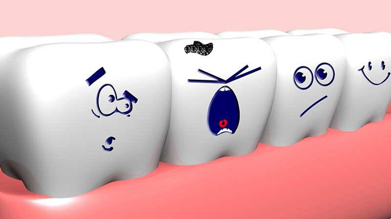 Tooth-decay-prevention