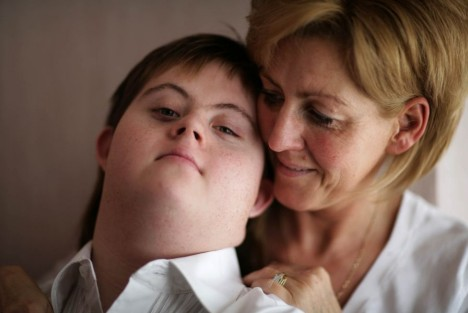 What does Down Syndrome look like?