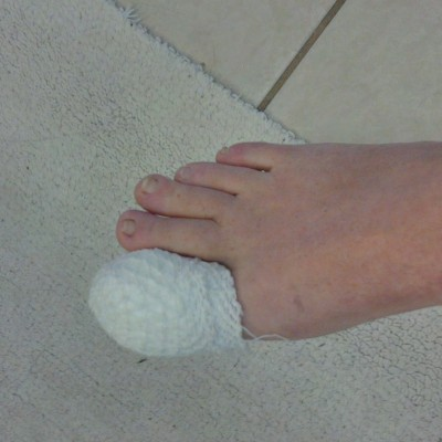 Toe is wrapped after surgery