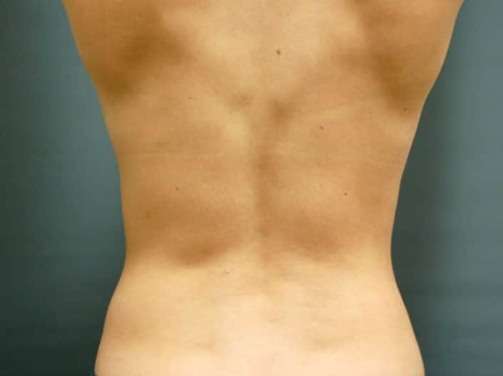 liposuction lehi