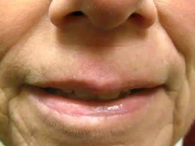 scar correction lehi