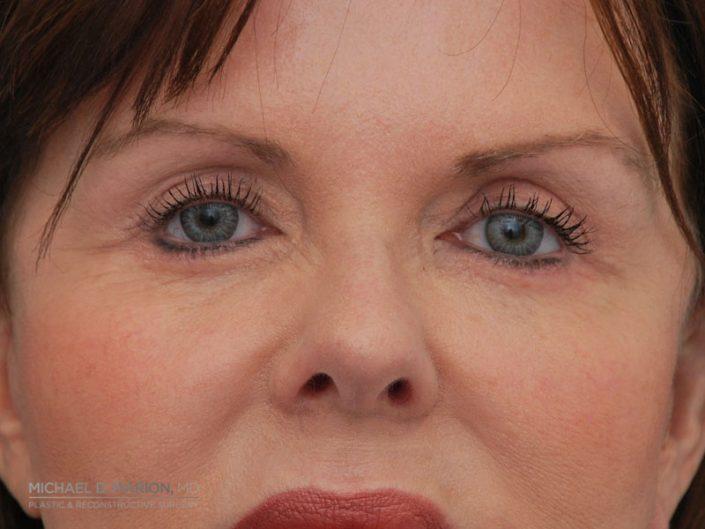 eyelid plastic surgery utah county