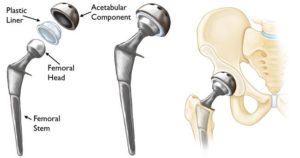 Total Hip 300x158 Total Hip Replacement