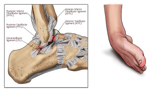 inversion injury33 with text new 300x182 Jeremy Maclin Injury