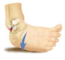 """ankle sprain Ankle Sprain """"Home Remedy"""""""