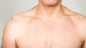 Shoulder Seperation STACK1 300x169 Rehab after a Separated Shoulder