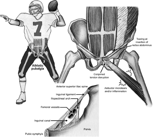hernia Sports Hernia Surgery