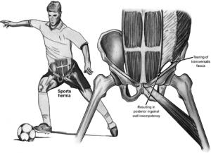sports hernia Sports Hernia Surgery