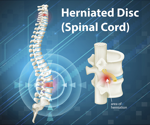 3D medical illustration of herniated disc