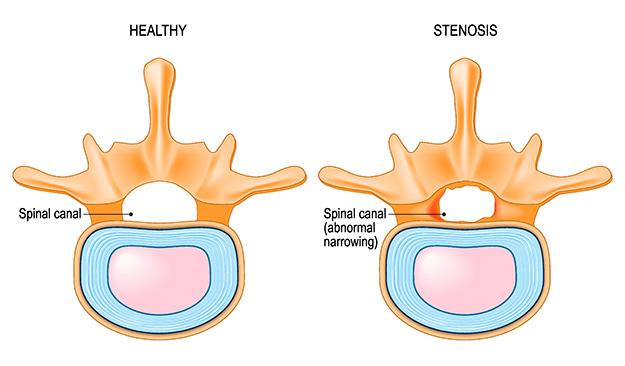 medical illustration of spinal stenosis