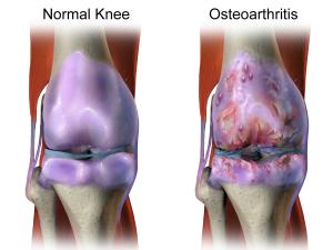 Arthritis, joint pain
