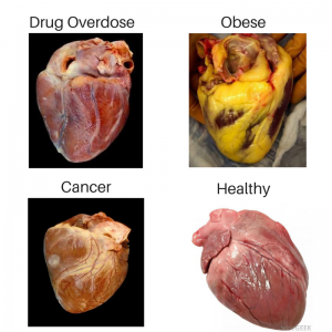 Heart, health, cholesterol, chiropractic, obese, drug overdose, cancer