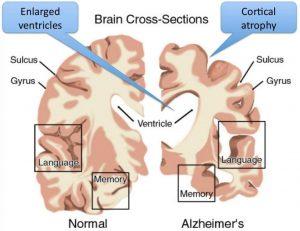 Brain degeneration, chiropractic