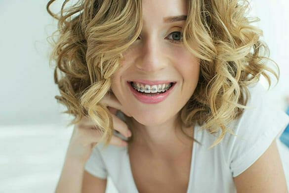 adult braces - braces for adults