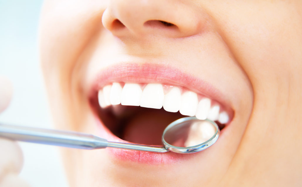 Teeth Whitening Ottawa