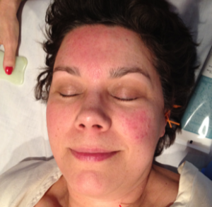 face with rosacea treated by michelle gellis