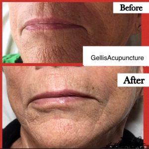 before and after photo of gellis acupuncture chin