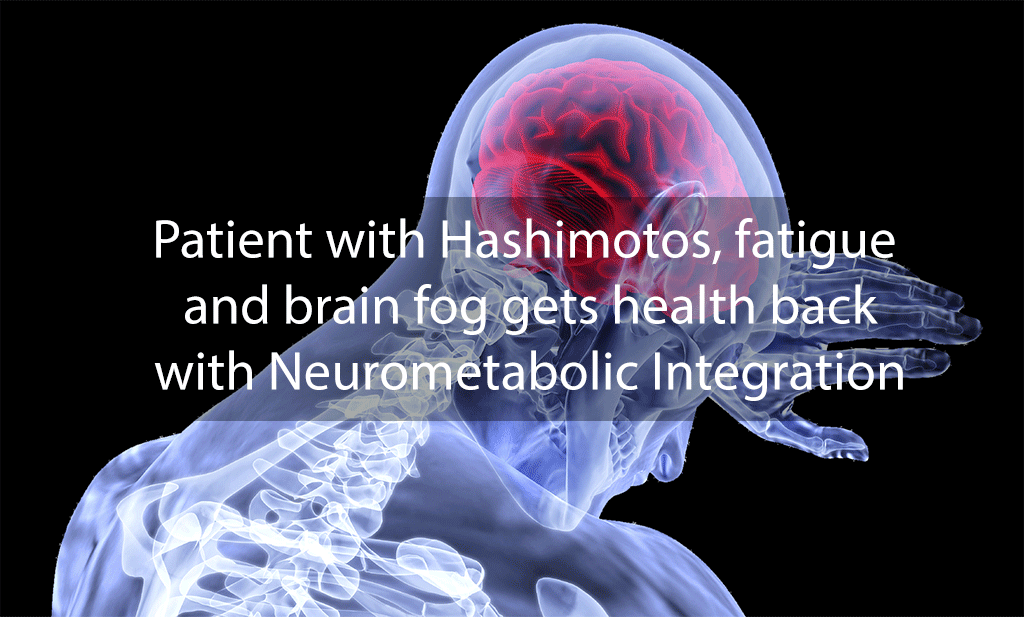 Patient with Hashimotos, fatigue and brain fog gets health back with Neurometabolic Integration