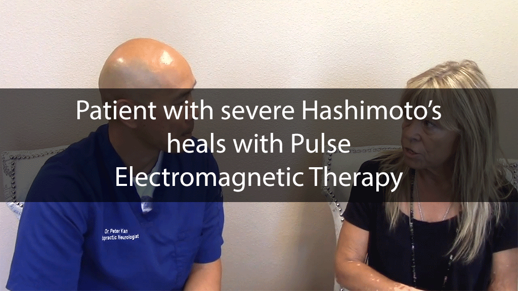 Patient with severe Hashimoto's heals with Pulse Electromagnetic Therapy