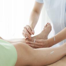 Acupuncture Camden pain relief