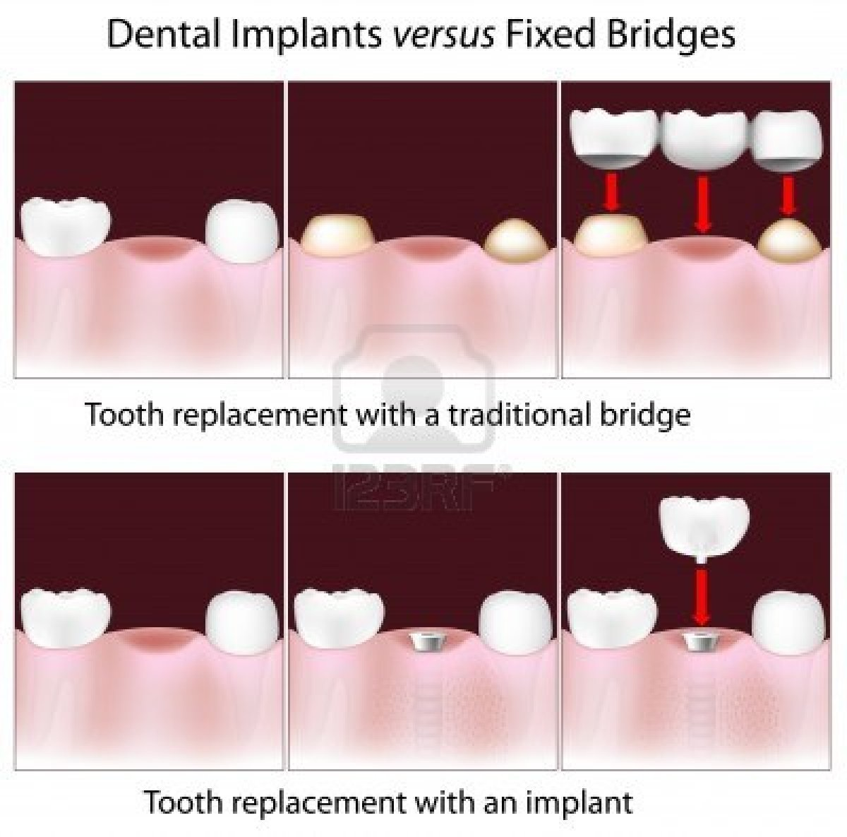 dental_bridge